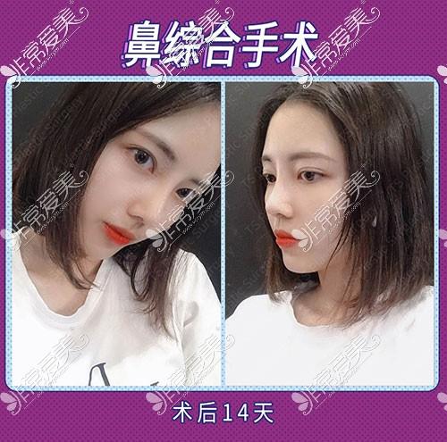 韩国TS整形隆鼻术后14天
